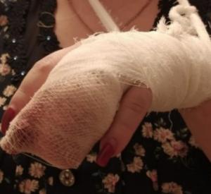 В Смоленске ротвейлер откусил местной жительнице палец