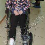 Девятилетняя девочка получила ожоги и перелом после посещения оздоровительного центра