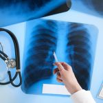Показатели заболеваемости туберкулезом по области остаются по-прежнему высокими