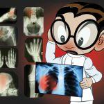 В Смоленске врач-рентгенолог пойдёт под суд за «липовое» заключение